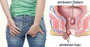 Mengobati Ambeien Berdarah dengan Cara Tradisional